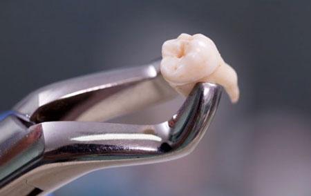 خارج کردن دندان