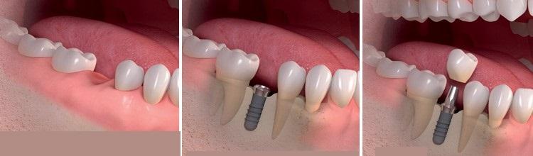 فرایند ایمپلنت دندان