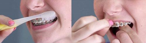 نحوه صحیح مسواک کردن و نخ دندان برای دندان های ارتودنسی شده