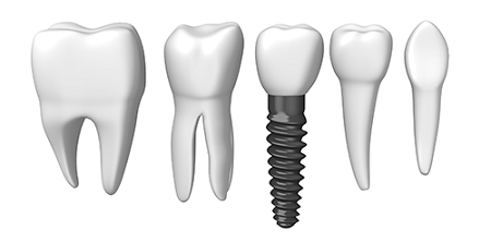 مراقبت از ایمپلنت دندان بعد از دوران بهبودی جراحی