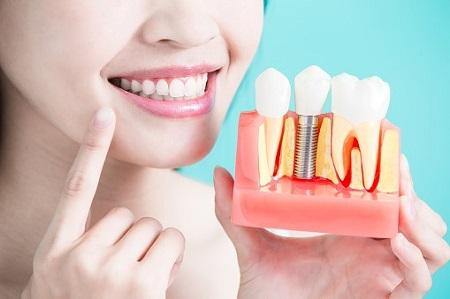 چه افرادی کاندیدای مناسب کاشت ایمپلنت دندان می باشند؟