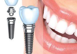 افزایش طول عمر ایمپلنت دندان با افزایش مراقبت وسلامت دهان و دندان