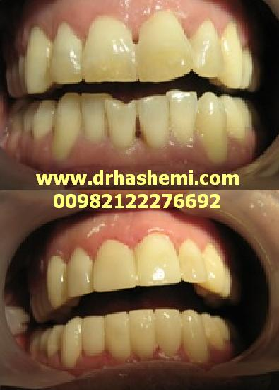دندانپزشک متخصص کاشت ایمپلنت دندان, کاشت ایمپلنت, کاشت دندان, کاشتن ایمپلنت, کاشتن دندان, دندانپزشک کاشتن ایمپلنت دندان, پیوند استخوان فک, پیوند سینوس فک, پیوند استخوان سینوس فک, بازسازی استخوان تحلیل رفته, بازسازی سینوس فک, رفع تحلیل فک دندانپزشک ایمپلنت دندان, دندانپزشک زیبایی, لامینیت دندان, لمینیت دندان