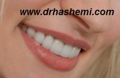 کاشت ایمپلنت, کاشت دندان, دندانپزشک متخصص کاشت ایمپلنت دندان, کاشتن ایمپلنت, کاشتن دندان, دندانپزشک کاشتن ایمپلنت دندان, پیوند استخوان فک, پیوند سینوس فک, پیوند استخوان سینوس فک, بازسازی استخوان تحلیل رفته, بازسازی سینوس فک, رفع تحلیل فک دندانپزشک ایمپلنت دندان
