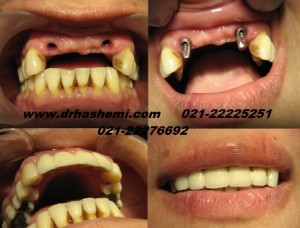 dandan pezeshki zibayee ortodonsi composite seramic laminate bone resorption dental implant 4