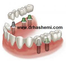 dental implant3
