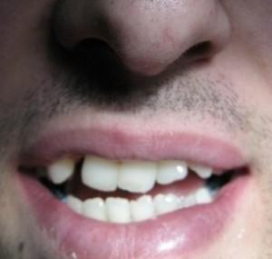 دندانپزشک کاشت ایمپلنت دندان - طراحی لبخند زیبا با لامینیت های دندانی - ارتودنسی1