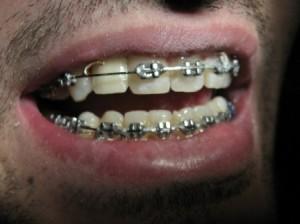 دندانپزشک کاشت ایمپلنت دندان - طراحی لبخند زیبا با لامینیت های دندانی - ارتودنسی11