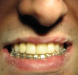 دندانپزشک کاشت ایمپلنت دندان - طراحی لبخند زیبا با لامینیت های دندانی - ارتودنسی16
