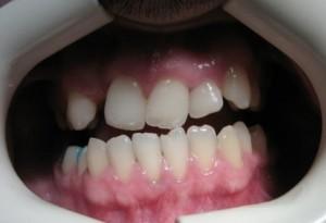 دندانپزشک کاشت ایمپلنت دندان - طراحی لبخند زیبا با لامینیت های دندانی - ارتودنسی2