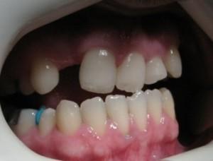 دندانپزشک کاشت ایمپلنت دندان - طراحی لبخند زیبا با لامینیت های دندانی - ارتودنسی3