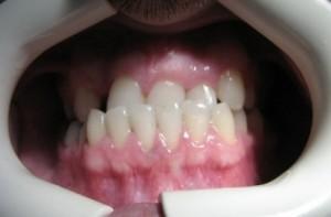 دندانپزشک کاشت ایمپلنت دندان - طراحی لبخند زیبا با لامینیت های دندانی - ارتودنسی5
