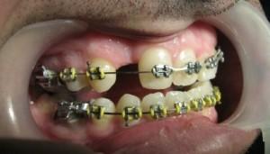 دندانپزشک کاشت ایمپلنت دندان - طراحی لبخند زیبا با لامینیت های دندانی - ارتودنسی9