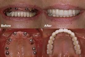دندانپزشک متخصص کاشت ایمپلنت دندان