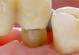 بریج یا پل دندانی: علت ،مزایا، و هزینه