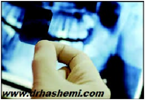 مرکز تخصصی ایمپلنت دکتر سیداحمدرضا هاشمی