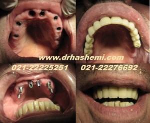 مراحل نصب 8 عدد ایمپلنت وجایگزینی تمامی دندانهای از دست رفته بیمار بصورت ساخت و نصب12 عدد روکش
