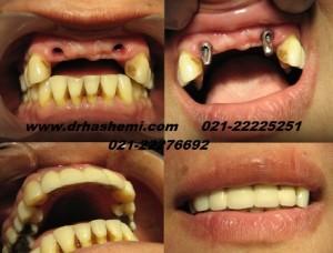 جایگزینی 4 دندان جلو با استفاده از 2 ایمپلنت بصورت ثابت و نظیر دندان طبیعی
