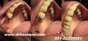گالری عکسهای کاشت ایمپلنت دندان