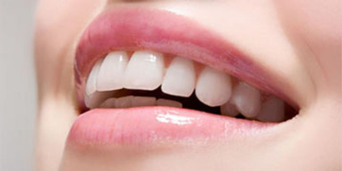 دندانپزشک زیبایی , زیبایی دندان , طراحی لبخند , سفید کردن دندان , رفع زردی دندان ,ترمیم شکستکی دندان , لبخند زیبا ,