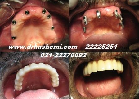 عوارض ايمپلنت دندان