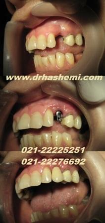 دندانپزشک متخصص کاشت ایمپلنت دندان, کاشت ایمپلنت, کاشت دندان, کاشتن ایمپلنت, کاشتن دندان, دندانپزشک کاشتن ایمپلنت دندان, پیوند استخوان فک, پیوند سینوس فک, پیوند استخوان سینوس فک, بازسازی استخوان تحلیل رفته, بازسازی سینوس فک, رفع تحلیل فک دندانپزشک ایمپلنت دندان
