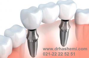 عوامل موثر بر هزینه ایمپلنت دندان
