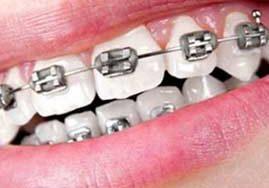 انواع ارتودنسی دندان (ثابت،متحرک) به همراه هزینه و مزایا