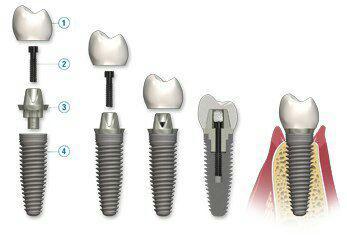 کاشت ایمپلنت, کاشت دندان, دندانپزشک کاشت ایمپلنت دندان, کاشتن ایمپلنت, کاشتن دندان, دندانپزشک کاشتن ایمپلنت دندان, پیوند استخوان فک, پیوند سینوس فک, پیوند استخوان سینوس فک, بازسازی استخوان تحلیل رفته, بازسازی سینوس فک, رفع تحلیل فک دندانپزشک ایمپلنت دندان