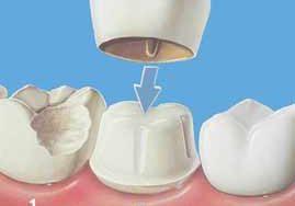 انواع روکشهای دندان؛ قیمت، مزایا، عوارض