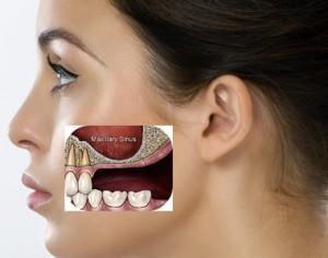 پیوند سینوس فک دندانپزشک متخصص کاشت ایمپلنت دندان, کاشت ایمپلنت, کاشت دندان, کاشتن ایمپلنت, کاشتن دندان, دندانپزشک کاشتن ایمپلنت دندان, پیوند استخوان فک, پیوند سینوس فک, پیوند استخوان سینوس فک, بازسازی استخوان تحلیل رفته, بازسازی سینوس فک, رفع تحلیل فک دندانپزشک ایمپلنت دندان,